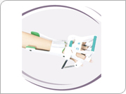 Dynamic Wrist Hand Orthosis With Finger Extension Assist
